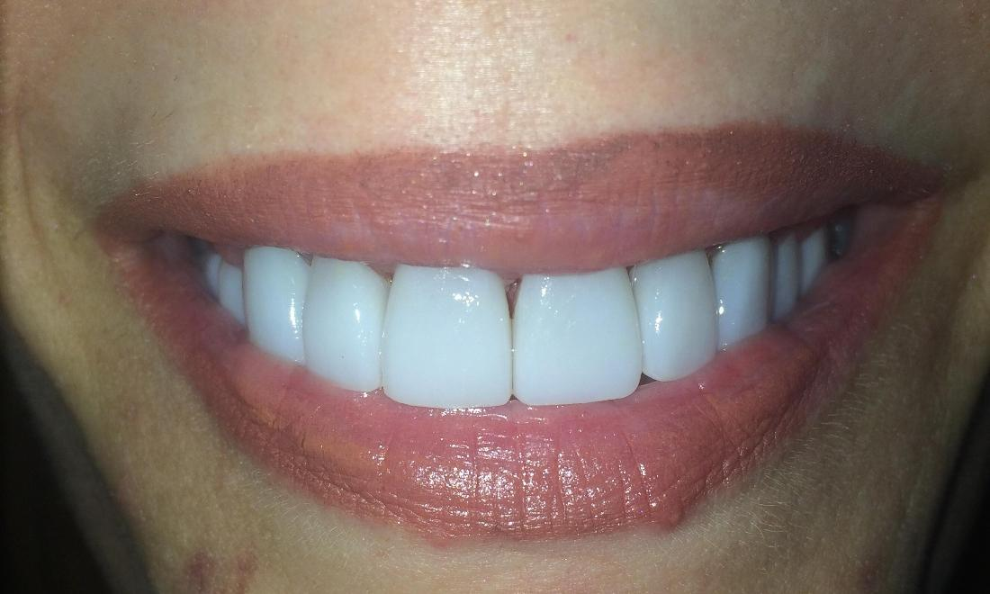 After Veneers | Rockville, MD | Gladnick Family & Cosmetic Dentistry