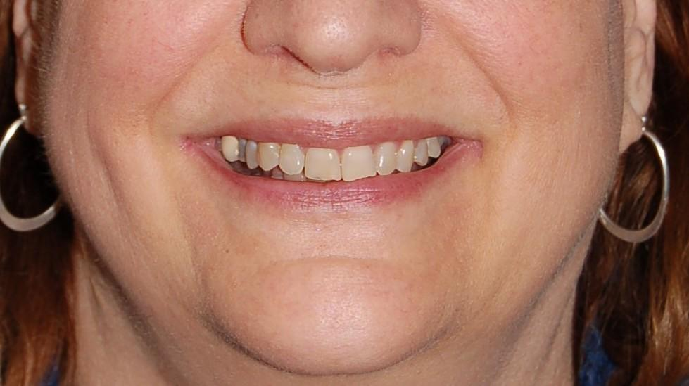 After ClearCorrect Straight Teeth | Rockville, MD | Gladnick Family & Cosmetic Dentistry