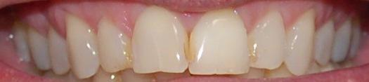 After internal bleaching | Rockville, MD | Gladnick Family & Cosmetic Dentistry