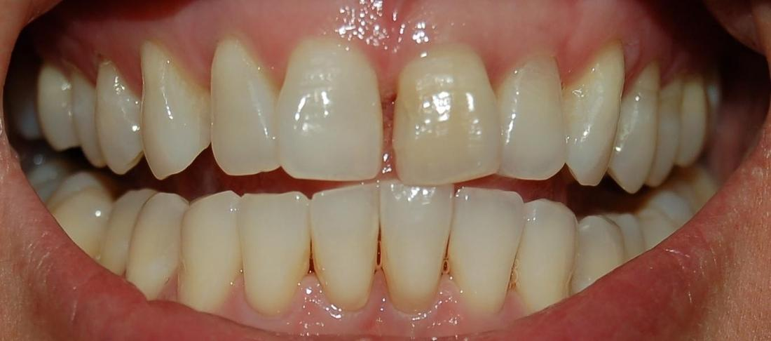 Before Internal Bleaching | Rockville, MD | Gladnick Family & Cosmetic Dentistry