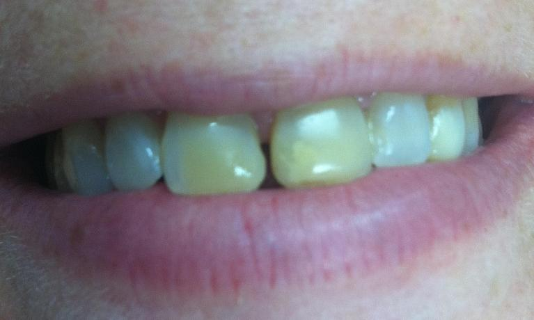 Fillings-and-Bonding-Before-Image
